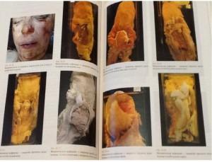фото страниц Судебная медицина #8